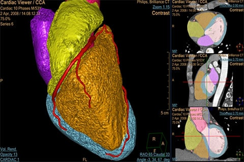 ct comprehensive cardiac analysis clinical image