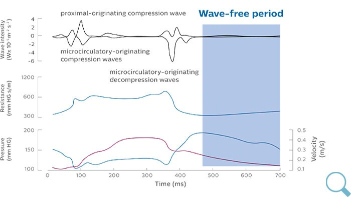 iFR wave-free period