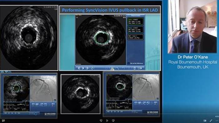 Laser in thrombus video