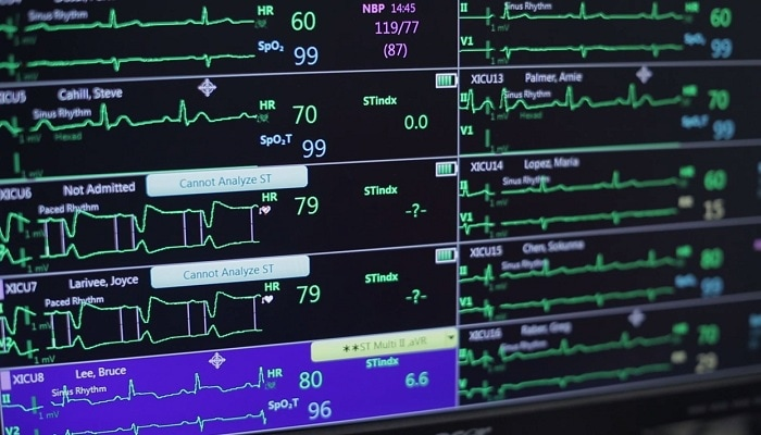 Alarm System Management Philips Healthcare