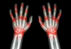 Causes of ILD - Rheumatologic or Autoimmune Diseases