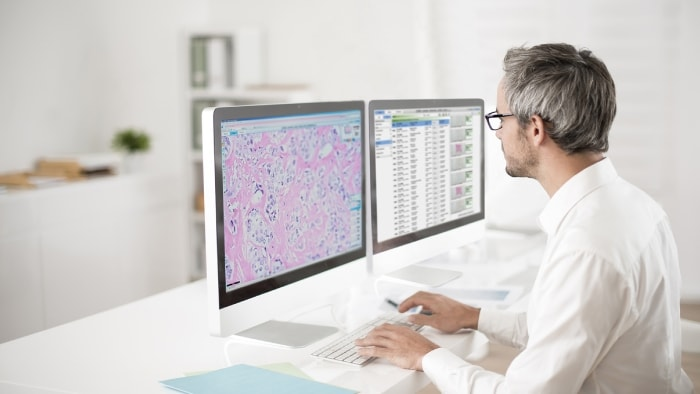 Digitization in Pathology and the promise of Artificial Intelligence